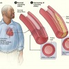 What Is The Big Problem With Elevating Your High Density Lipoprotein?…
