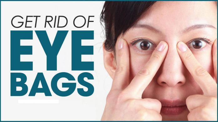 How to Minimize Under-Eye Bags