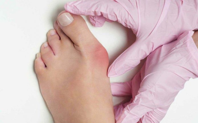 5 Ways to Treat Bunion without surgery